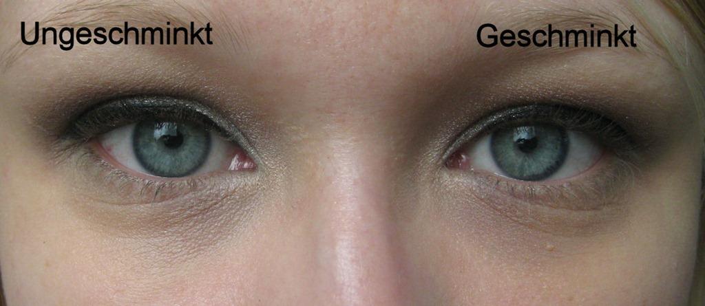 Helle Augenringe