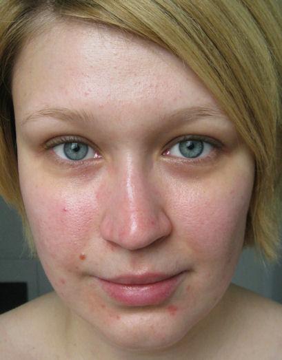 poren wegschminken